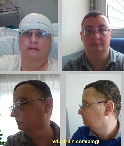 Après l'opération de mon méningiome, au fil des jours